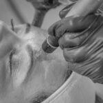 Male receiving skin needling on forehead
