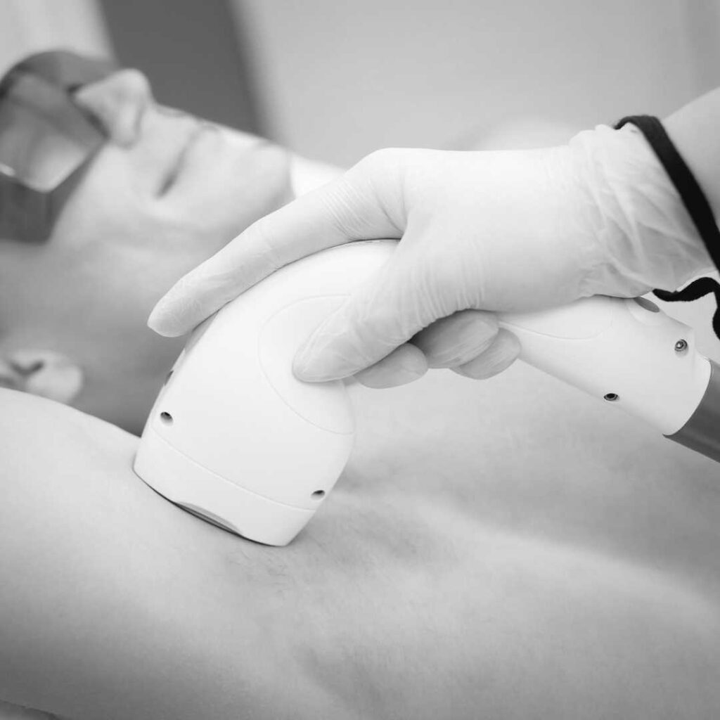Male receiving under arm laser treatment for hair removal