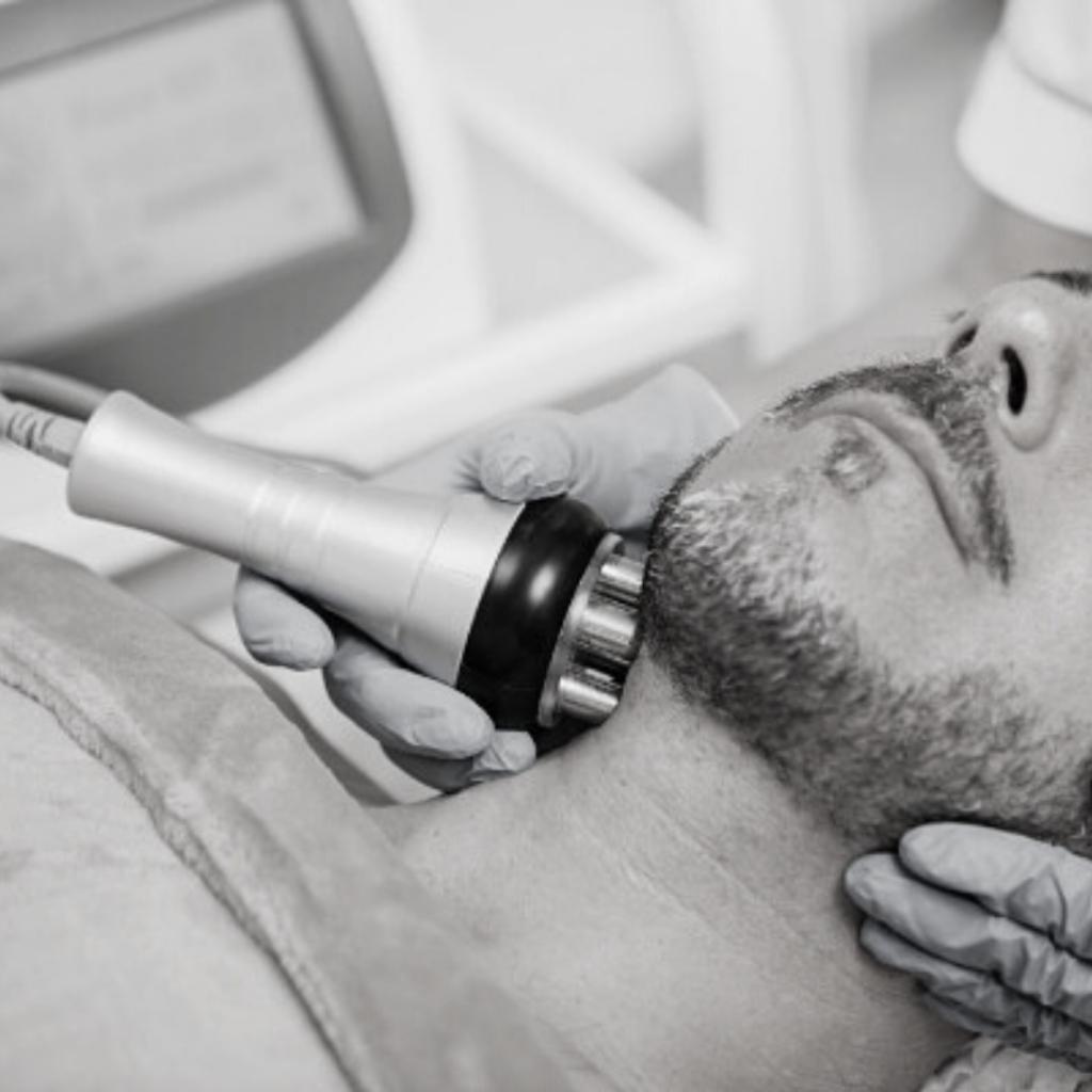 Skinic Radio Frequency Treatment